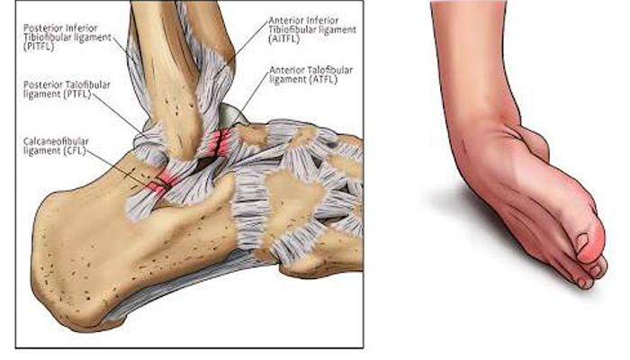 ข้อเท้าพลิก ทำอย่างไร
